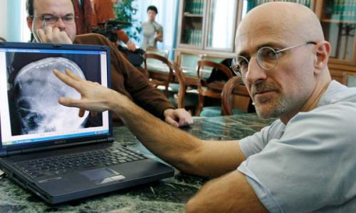 Sergio Canavero: greffe de tête humaine