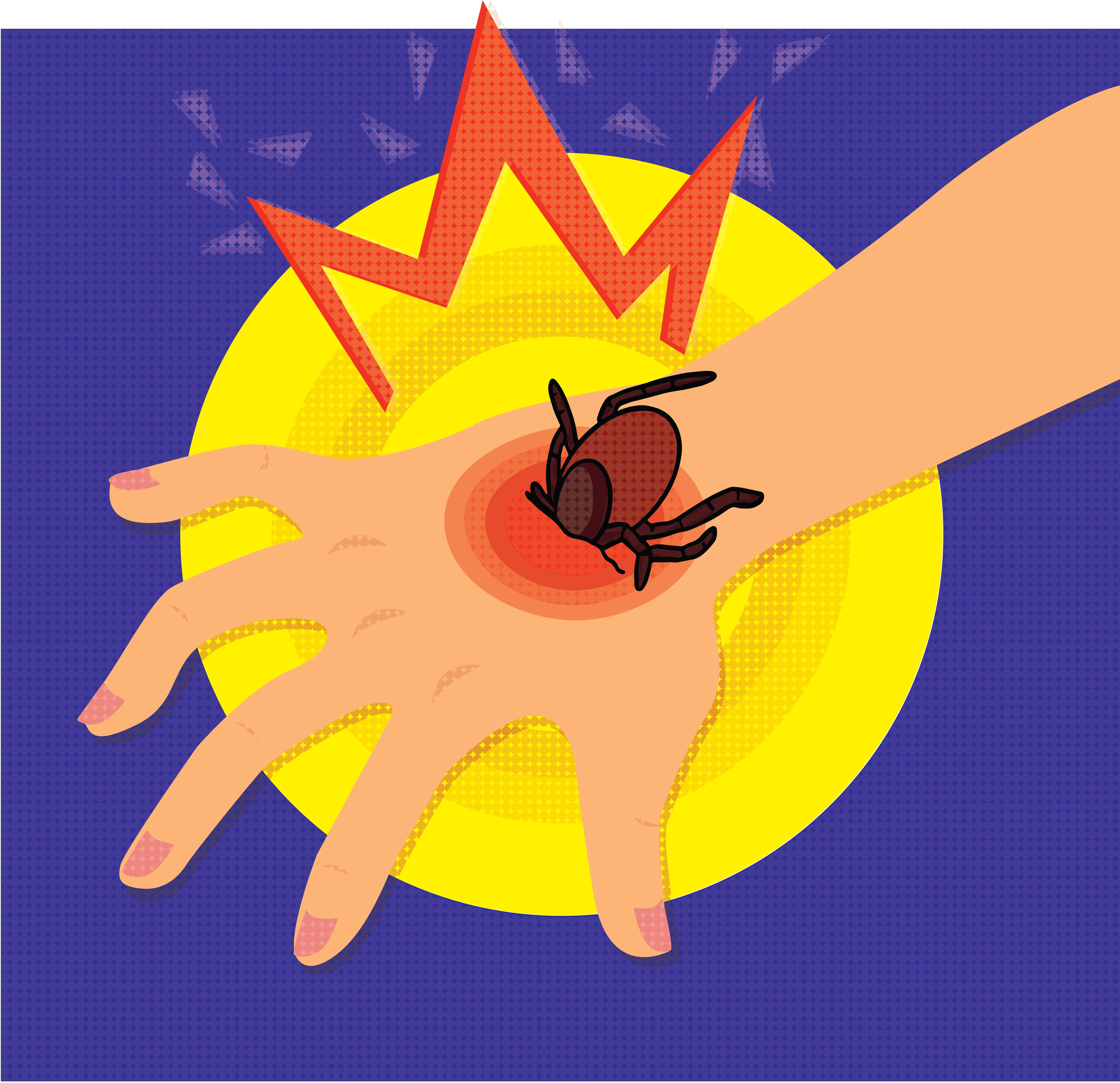Lyme disease: is a solution on the way?