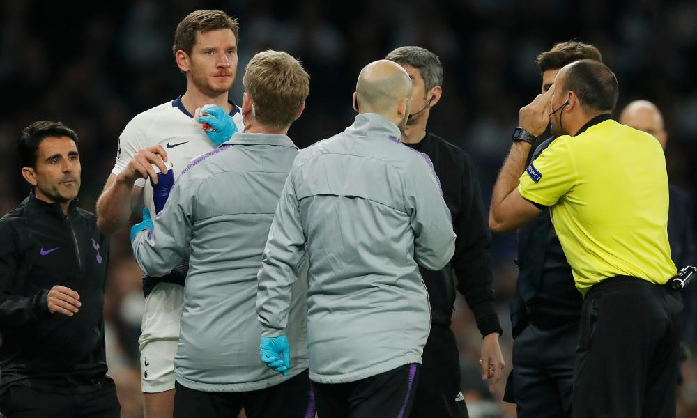 Jan Vertonghen was assessed by Tottenham's medical staff and had to change his bloodied shirt before taking the field again.