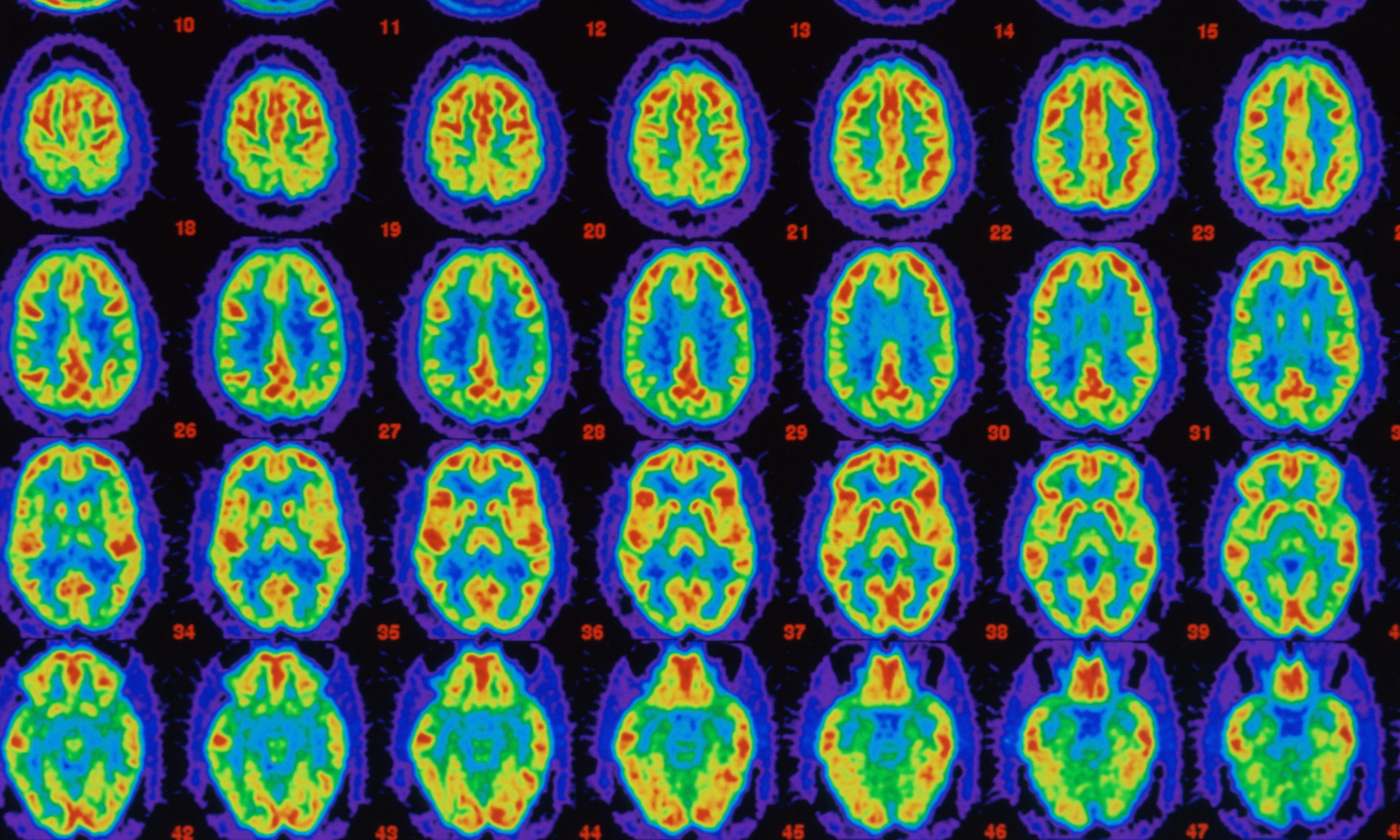 Protein tangles in Alzheimer's patients could help predict brain shrinkage