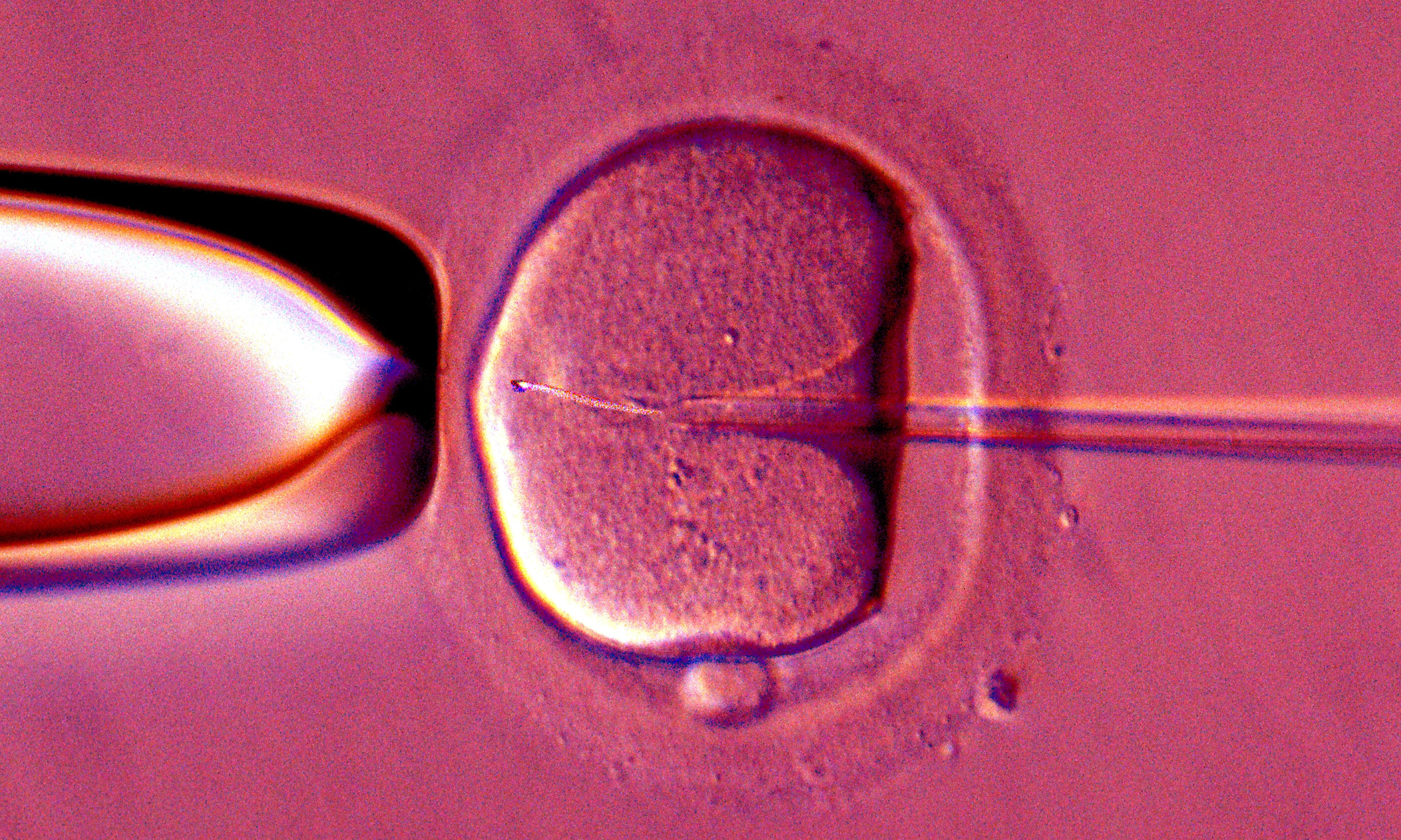 Have sperm will travel. But what would an all-female planet look like?