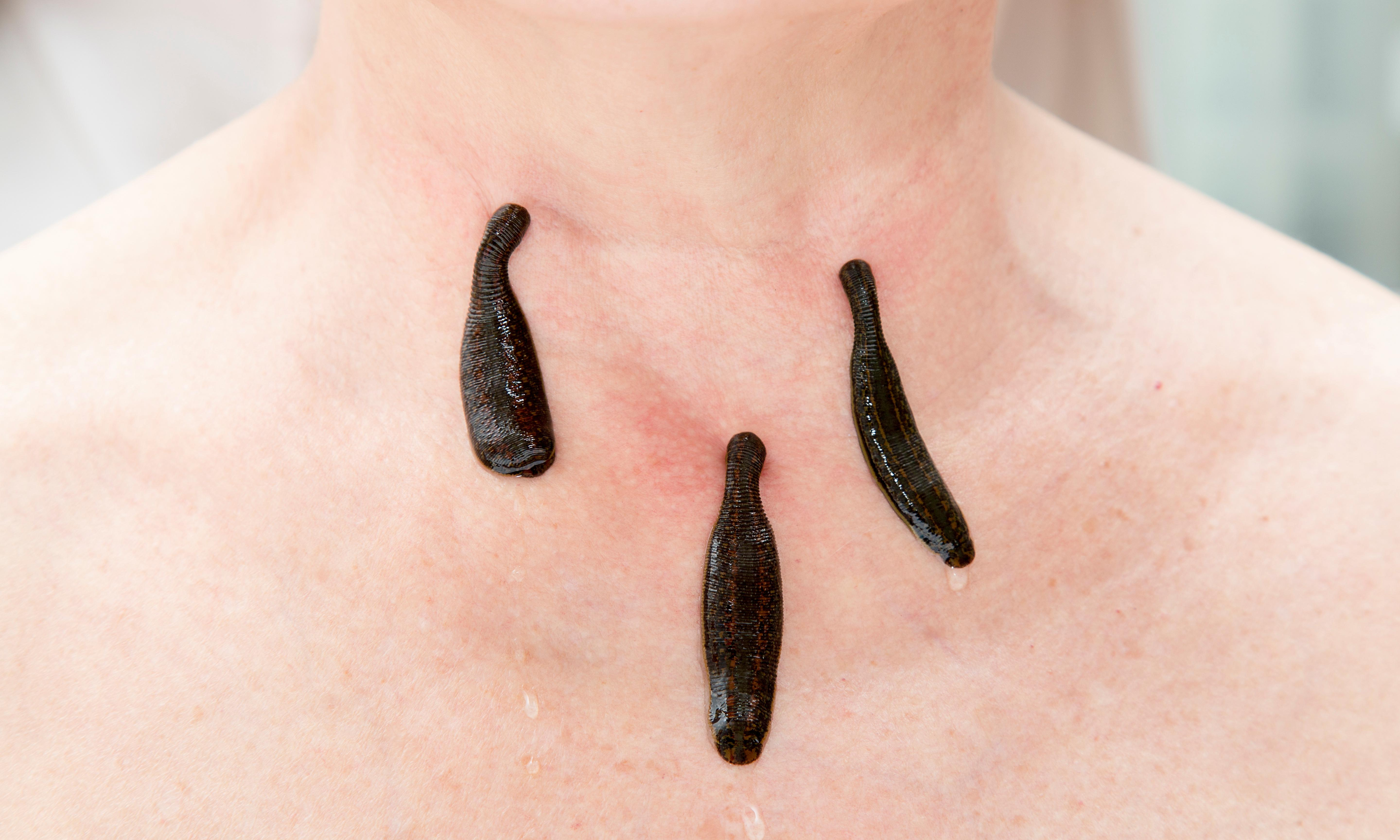 10 stomachs, 32 brains and 18 testicles – a day inside the UK's only leech farm