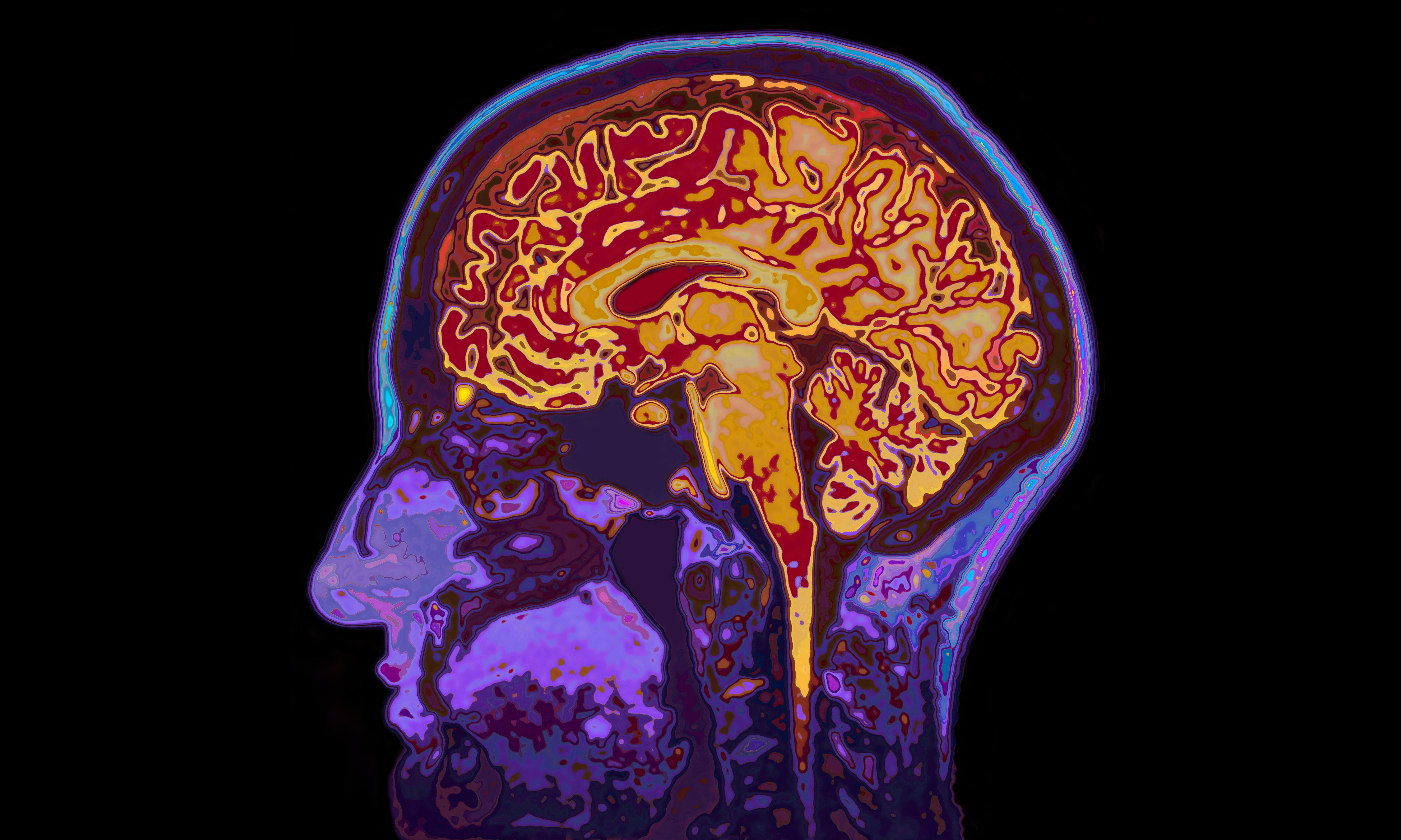 Common drug could prevent thousands of head injury deaths