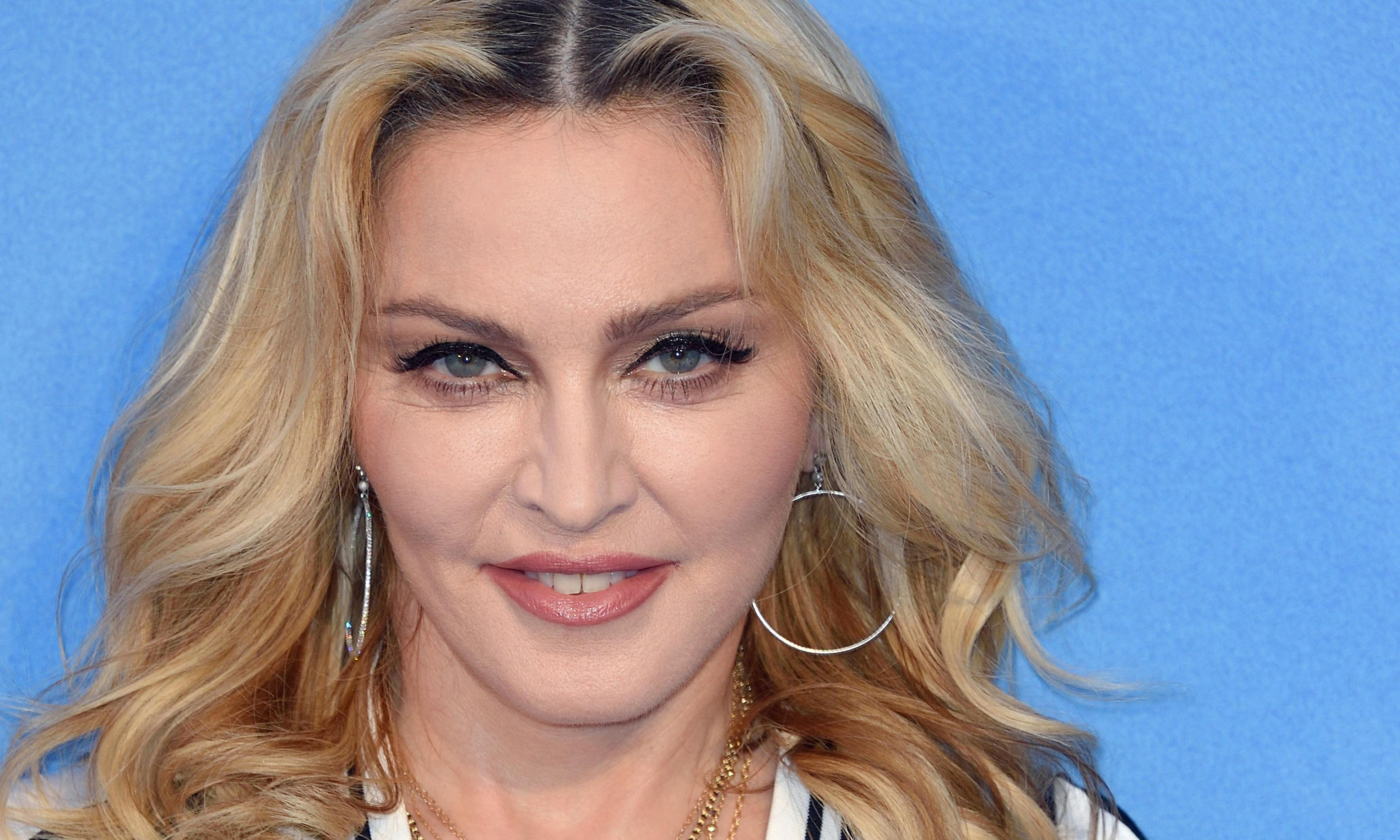 Wonky-teeth icons: the stars you should emulate, from Kate Moss to Madonna