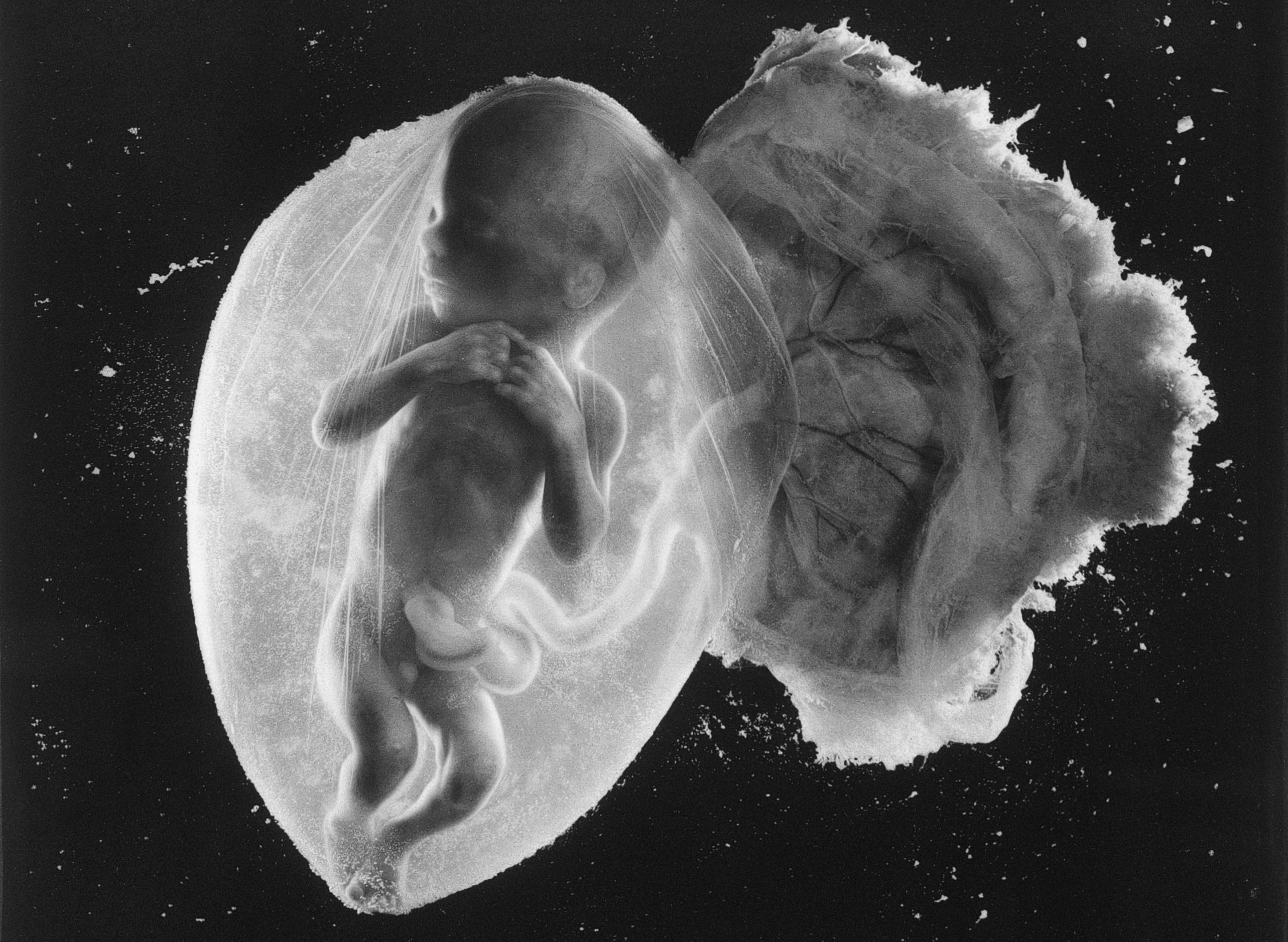 Foetus 18 Weeks: the greatest photograph of the 20th century?