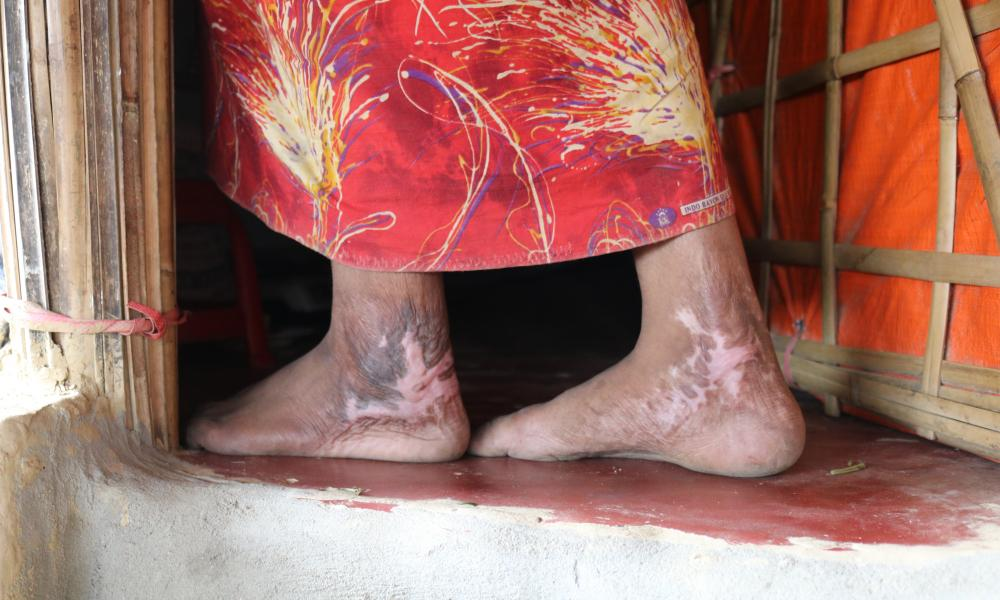 A 16-year old shows her scars after being tied up inside a hut that Myanmar soldiers then set alight. She was the only survivor among her 21 relatives, she says.