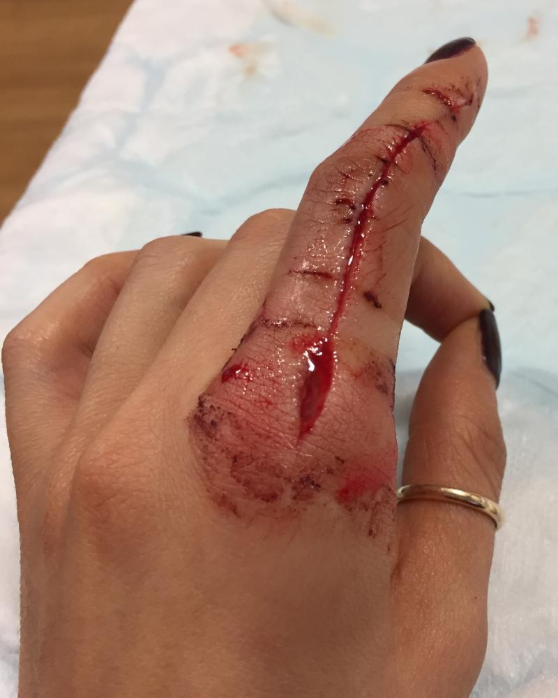 Left index finger with a deep cut wound from fingertip to knuckle. Bloodied with stitches.