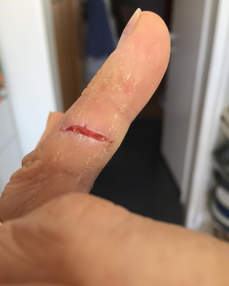 Healed cut on wedding finger.