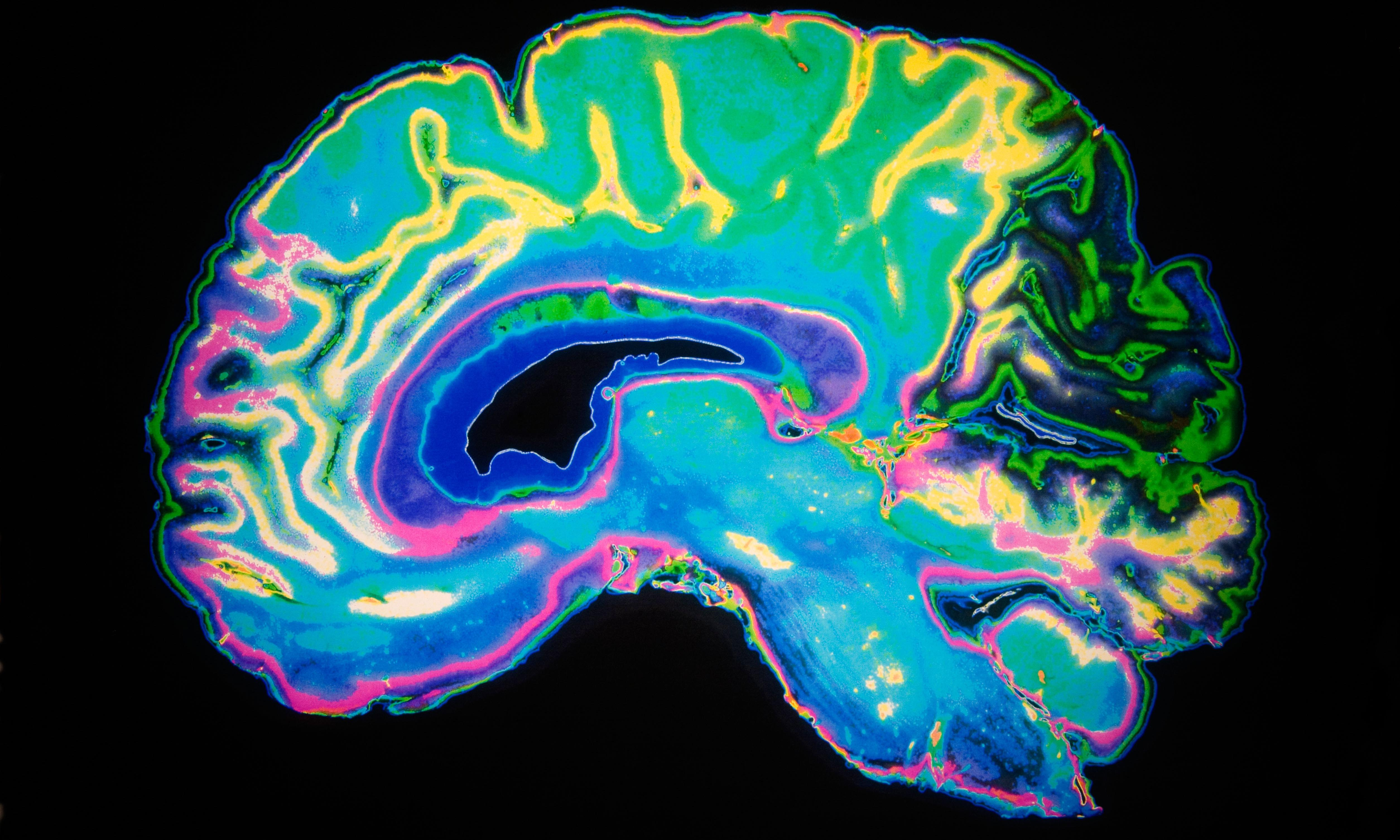 Long-term offenders have different brain structure, study says
