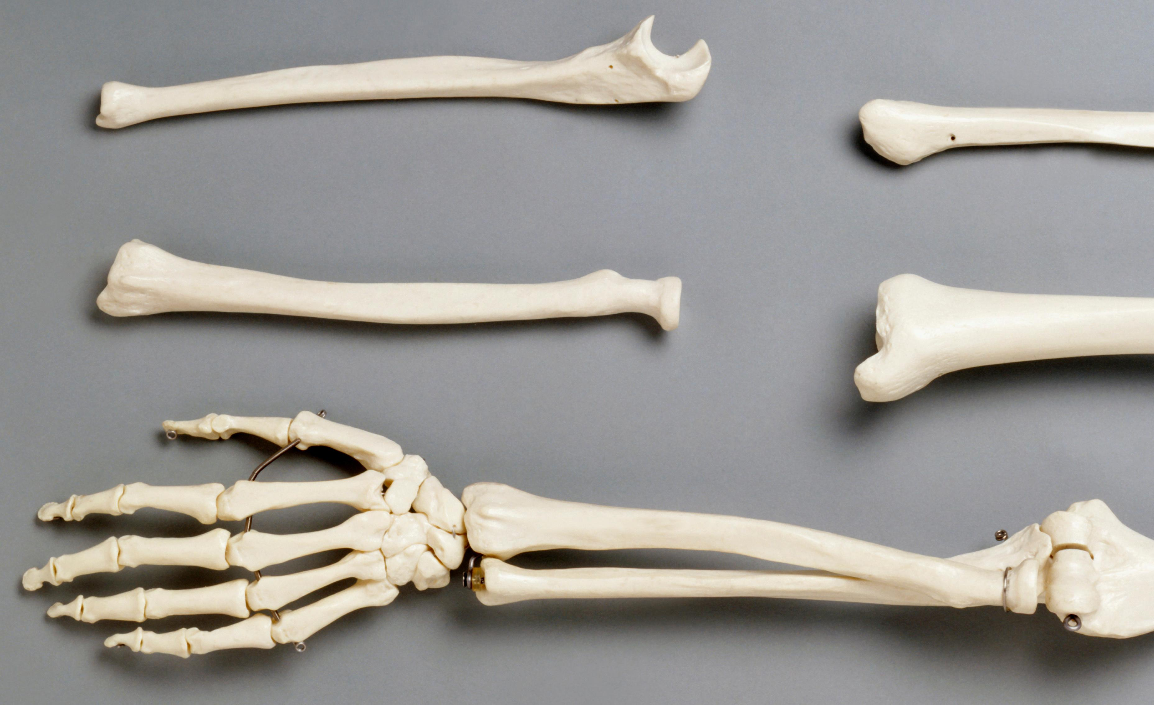 What were bones of contention in the Bone Wars? The Weekend quiz
