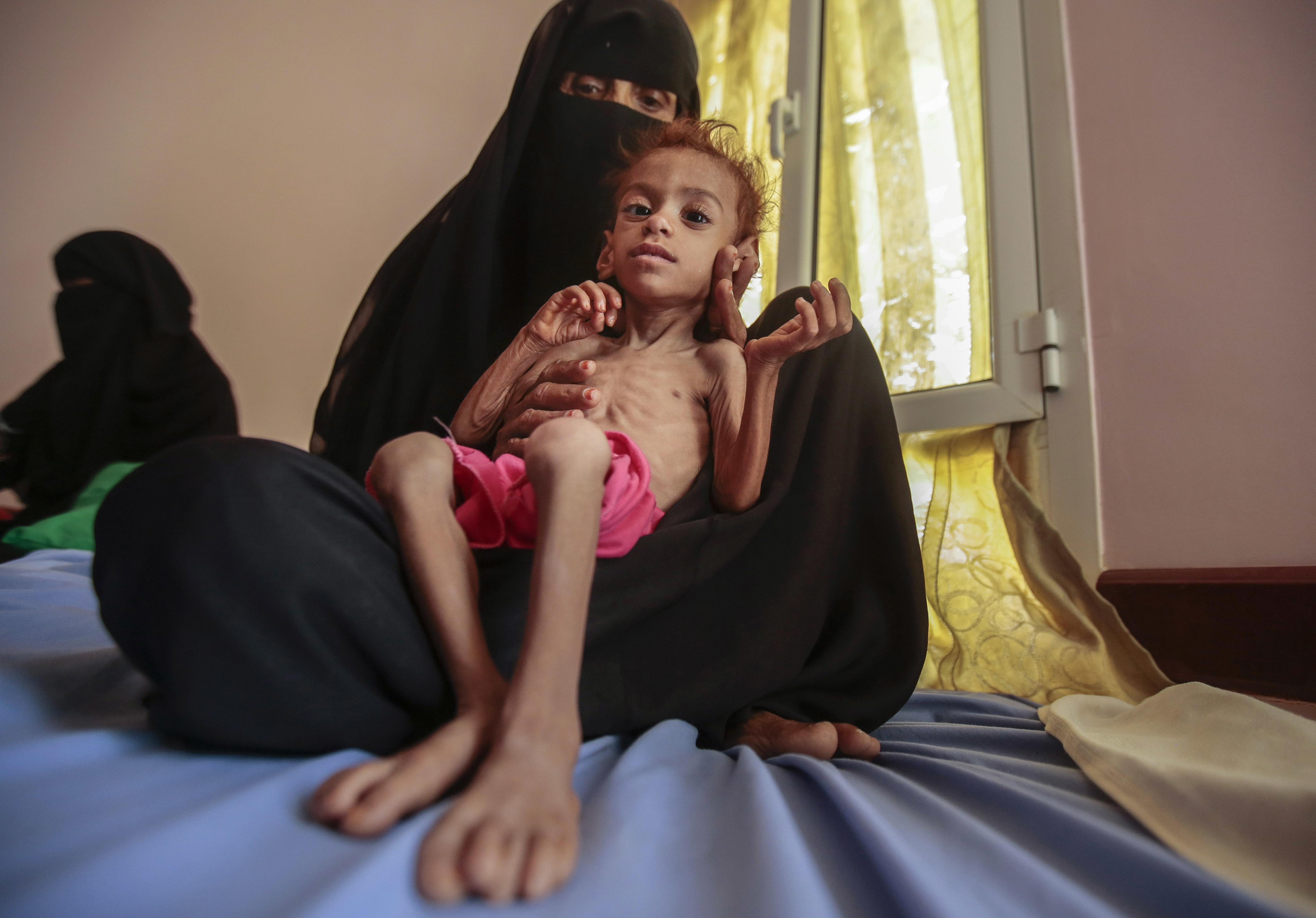 The Guardian view on Yemen's misery: the west is complicit