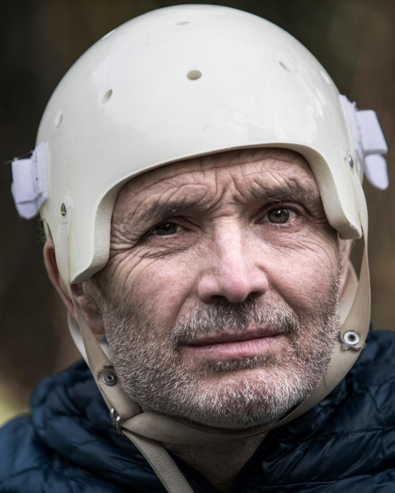 Bass wearing a helmet to protect his head where a section of skull was removed.