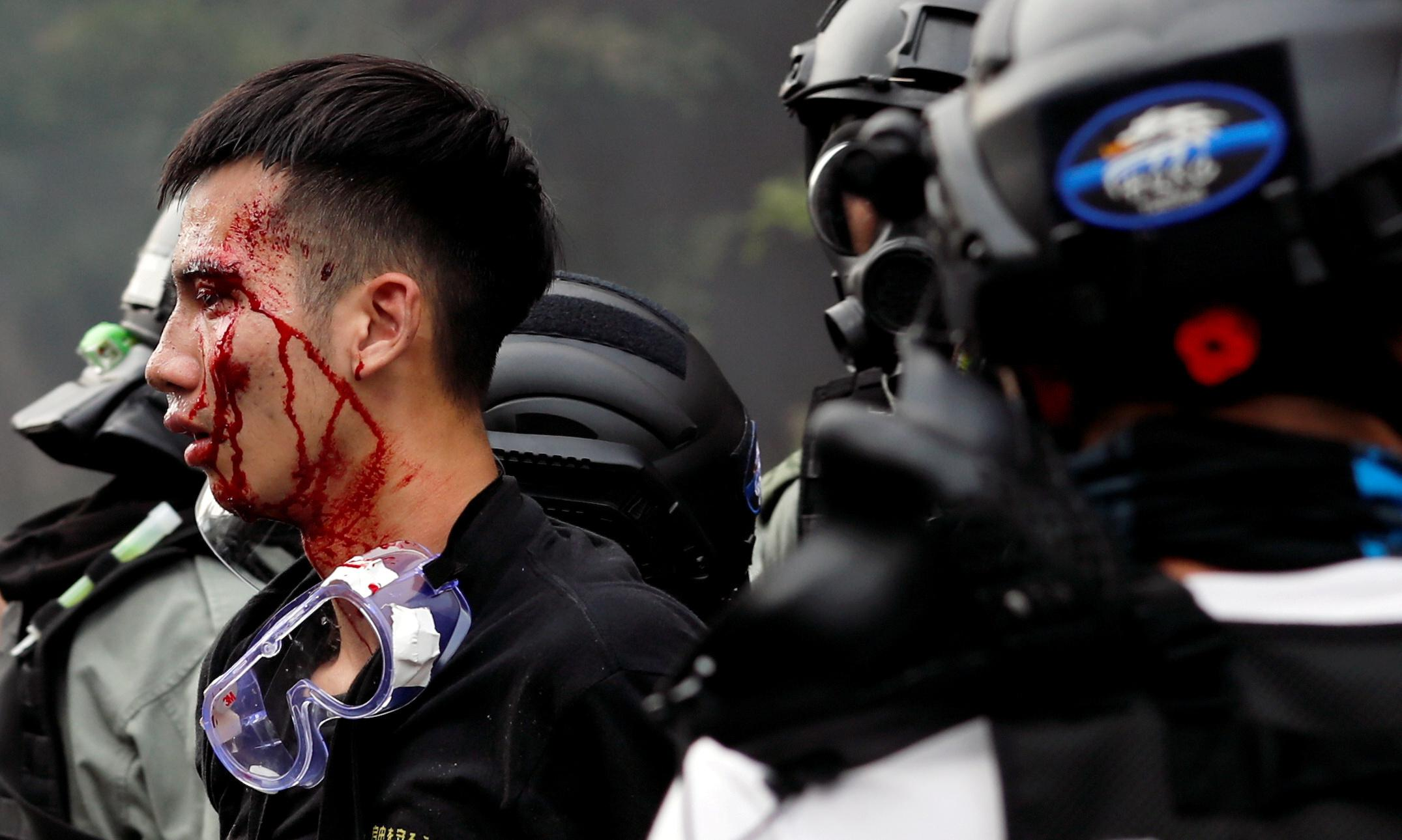 Hong Kong has declared war against its young people