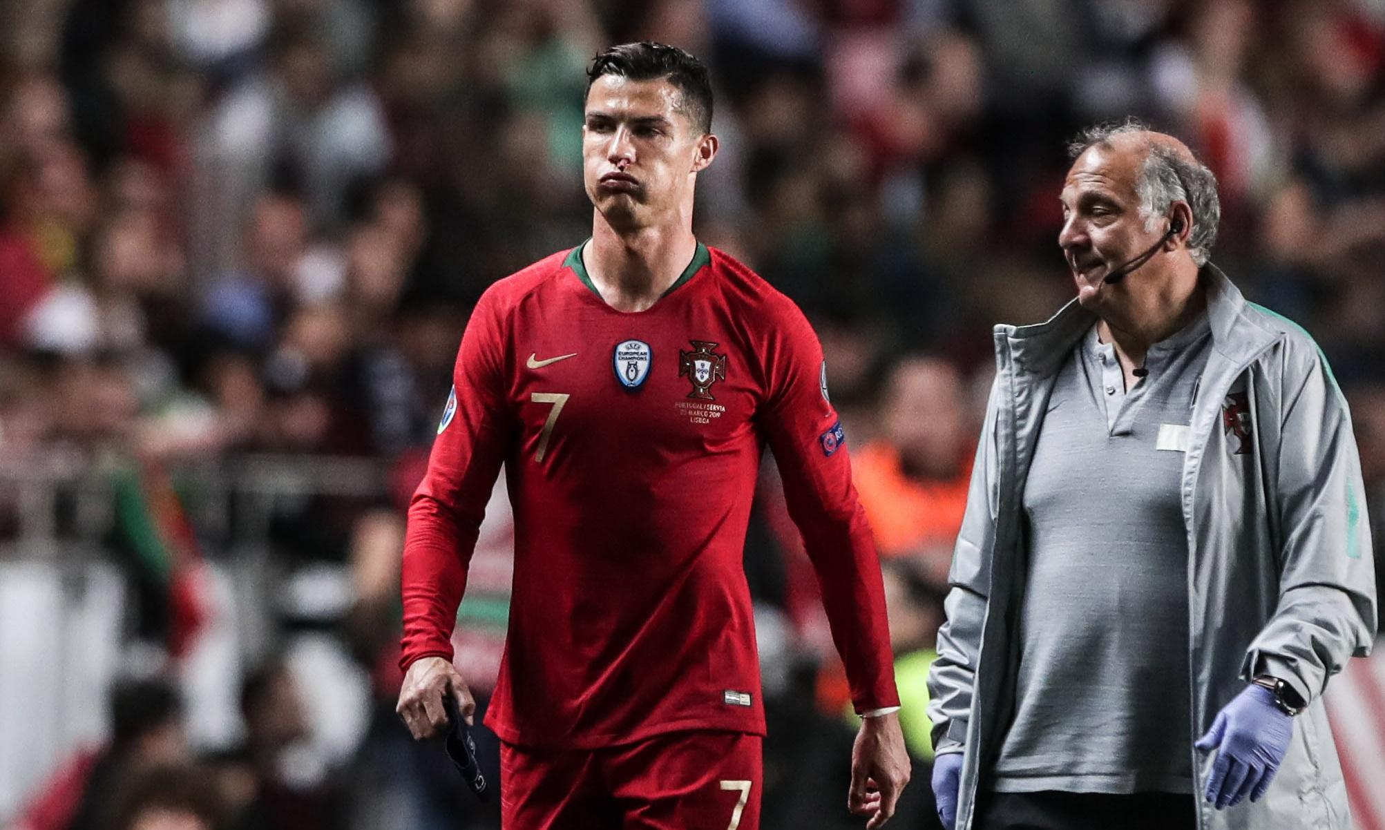 Euro 2020 qualifiers: Ronaldo injured as Portugal are held at home by Serbia