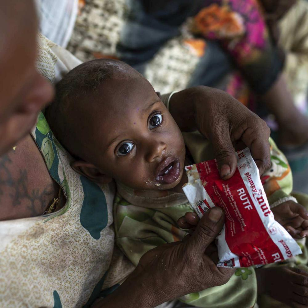 Letmedhin Eyasu holds her son Zewila Gebru, who is suffering from malnutrition, at a health centre in Agbe, Ethiopia.