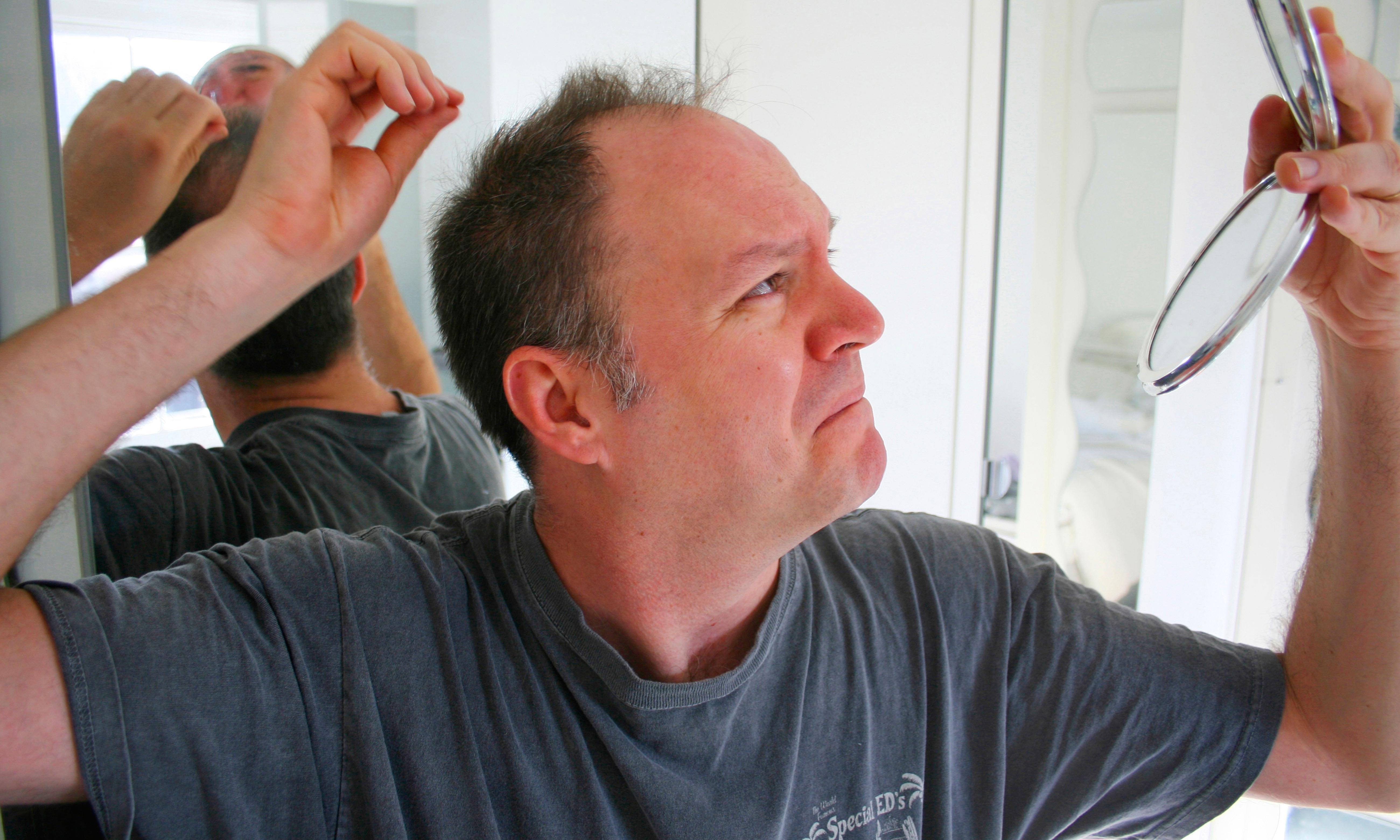Seven ways … to avoid hair loss