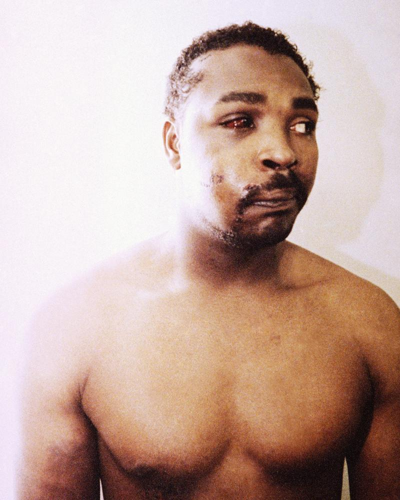 Rodney King on 9 March 1991, three days after he was beaten by four LAPD polie officers.