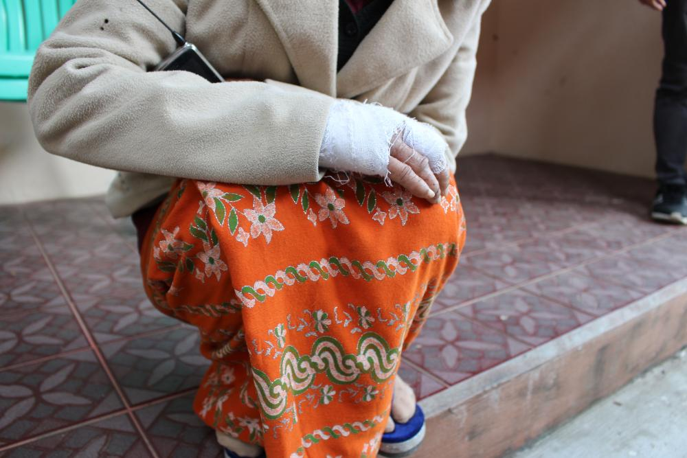 A sex worker rights defender in Kachin, Myanmar, with her face hidden shows her bandaged arm to Front Line Defenders